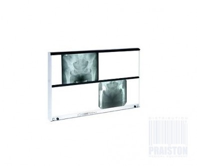 Image of X-Ray-View-Box-NGP-800 by PRAISTON